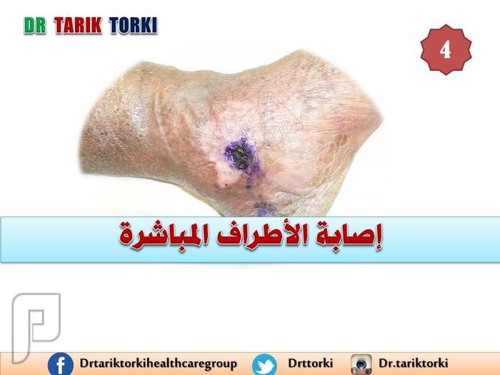 11 سبب قد تؤدى الى جلطة الساق يجب ان تعرفها | دكتور طارق تركى