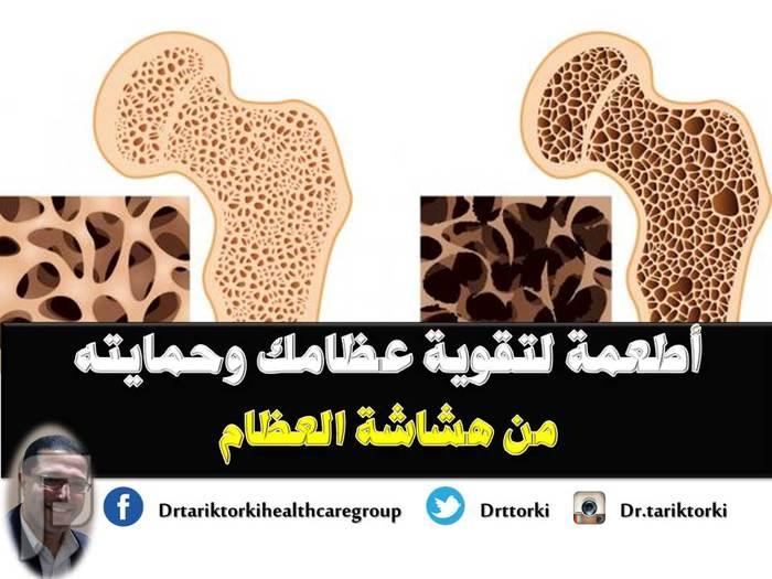 أطعمة لتقوية عظامك وحمايته من هشاشة العظام | دكتور طارق تركى أطعمة لتقوية عظامك وحمايته من هشاشة العظام | دكتور طارق تركى