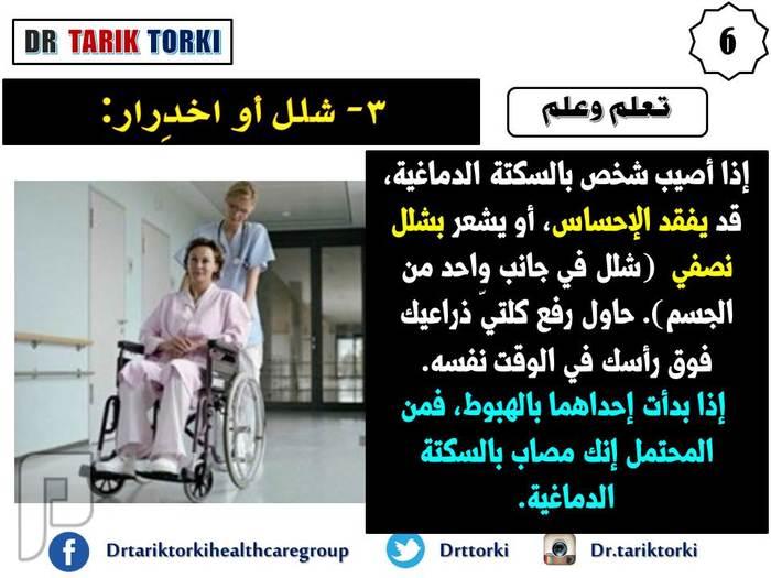 5 أعراض مفاجئة للسكتة الدماغية | دكتور طارق تركى
