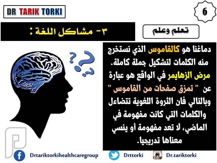 10 علامات تحذير من أعراض الزهايمر | دكتور طارق تركى