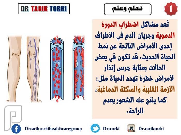 10نصائح ذهبية للتغلب على اضطراب الدورة الدموية في الساقين دكتور طارق تركى