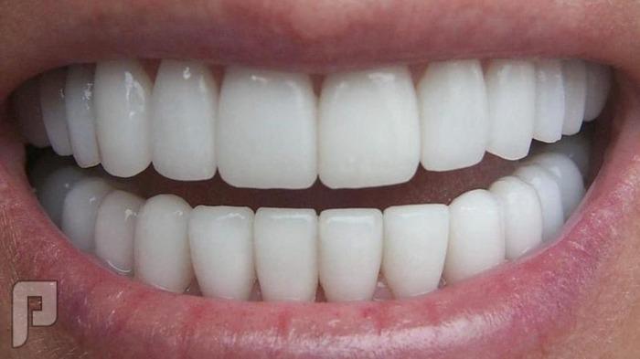 نصائح للعنايه بالأسنان