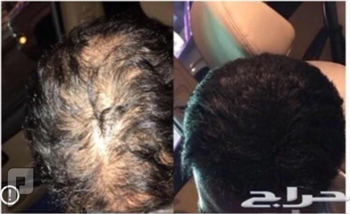 زيت الحشيش الافغاني الاصلي لانبات شعر الراس واللحيه والشنب وعلاج الثعلبه