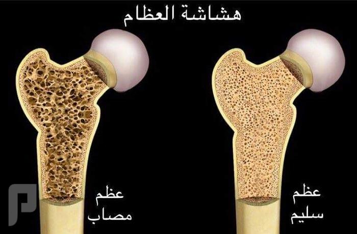اطعمة تسبب الاصابة بهشاشة العظام.