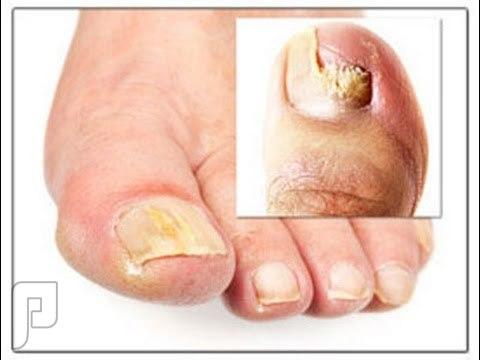 كبسولات بذور الجريب فروت لعلاج الفطريات التي تصيب اظافر القدمين.
