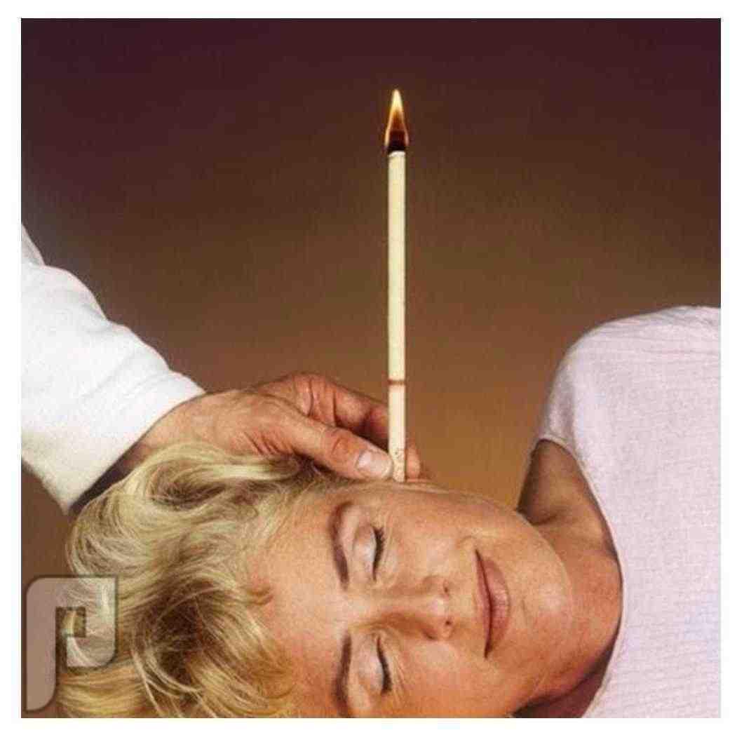 تنظيف الأذن بالشموع
