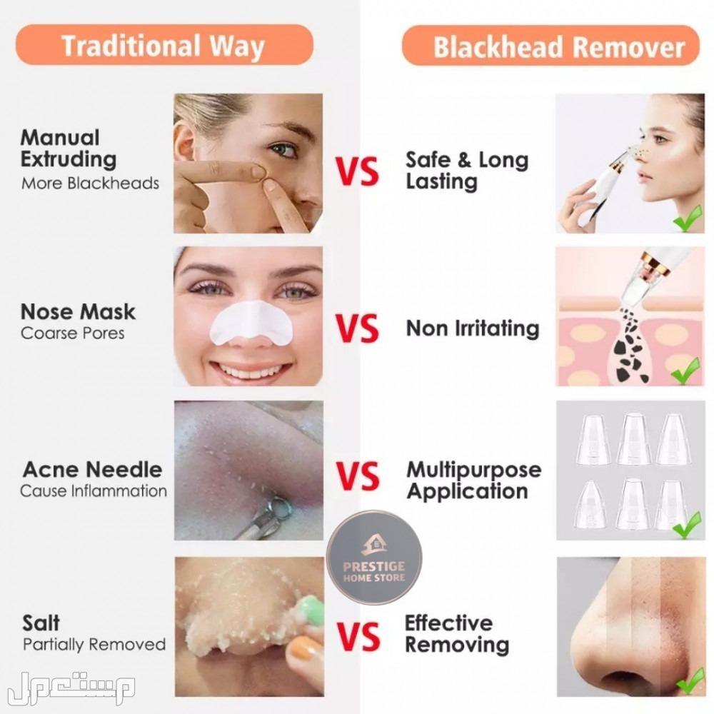 جهاز إزالة الرؤوس السوداء وتنظيف دهون الوجه