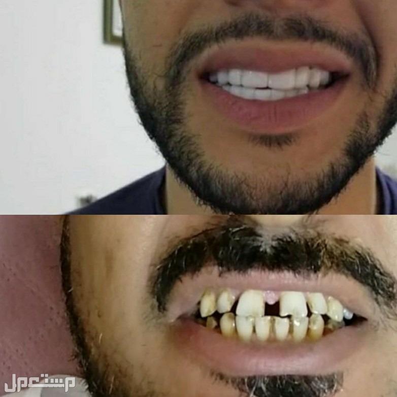 ابتسامه هوليود الحل الامثل والاسرع لاخفاء جميع عيوب الاسنان