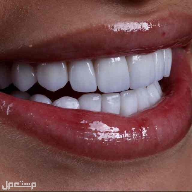 ابتسامات ايماكس3D