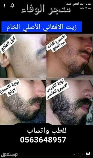 زيت الأفغاني الاصلي حل مشكلة الشعر جميعه