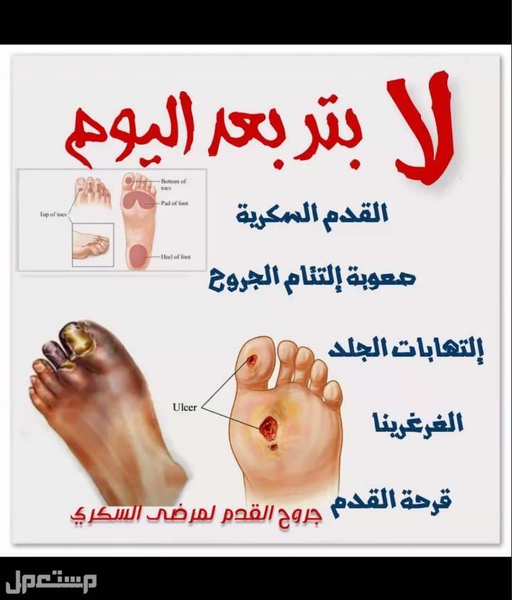منتجات تساعد في شفاء جروح السكري وتقرحات القدم