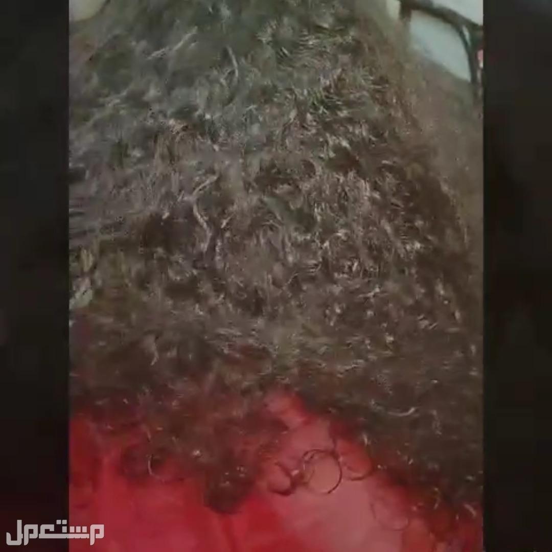 معالجات الشعر