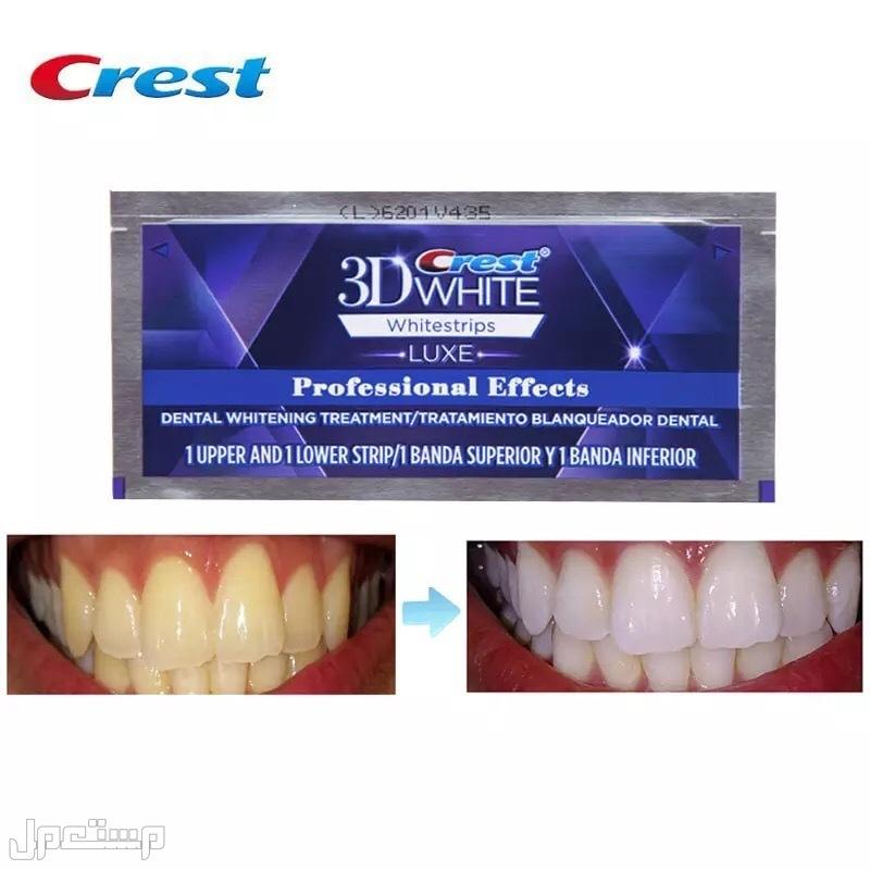 لصقات كريست لتبييض الأسنان