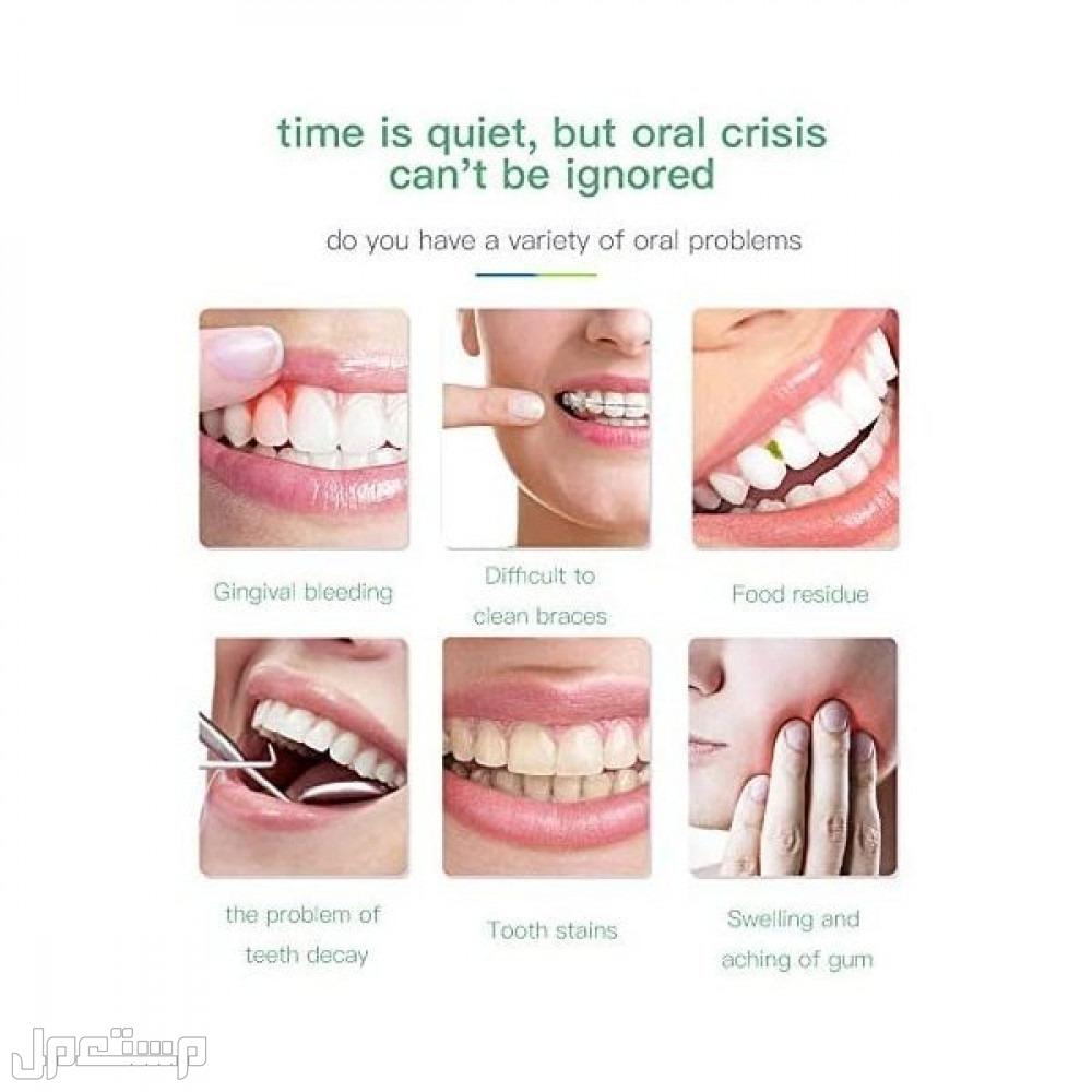جهاز تنظيف الأسنان المائي 300 مل اللاسلكي - قابل لاعادة الشحن بسعر مميز