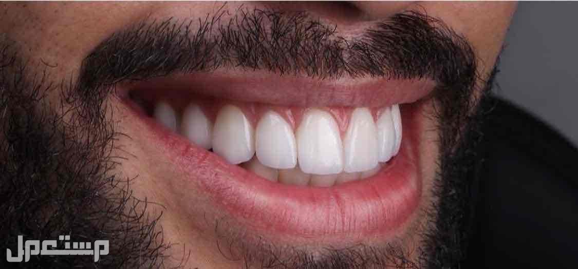 ابتسامة هوليود 3D